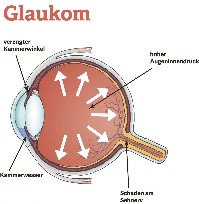 Grafische Darstellung des Auges mit Glaukom